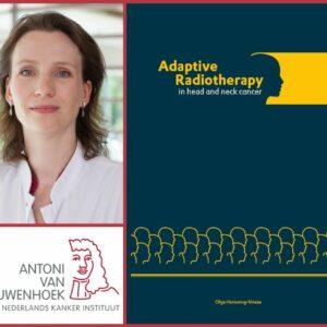 Promotie Olga Hamming-Vrieze I Adaptieve radiotherapie voor hoofd-halskanker