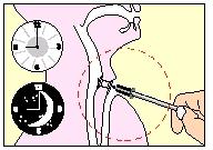 larynx007
